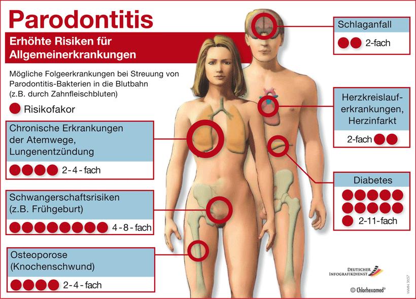 Eine Parodontitis gefährdet nicht nur Zahnfleisch und Zähne. Es können auch Bakterien in die Blutbahn gelangen und Entzündungen im Körper verursachen. Daher gilt sie auch als Risikofaktor u.a. für Herzkreislauferkrankungen, Herzinfarkt, Schlaganfall, chronische Erkrankungen der Atemwege, Lungenentzündung, Schwangerschaftsrisiken (z.B. Frühgeburt), Osteoporose (Knochenschwund), Rheuma, Arteriosklerose und Diabetes.